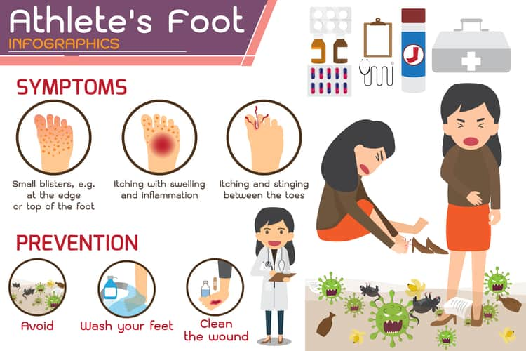 Athlete's Foot Info-graphic